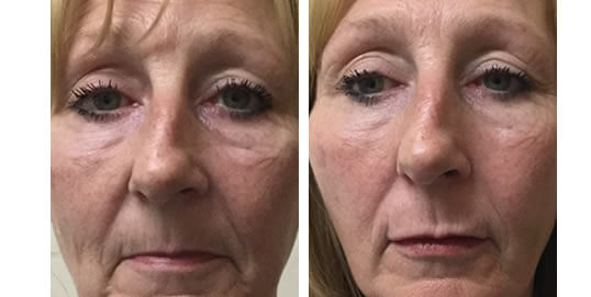 Dermal Fillers Inverness - Dermatologist Inverness | Emma J