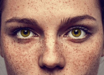 a lady with freckles and hyperpigmentation in inverness